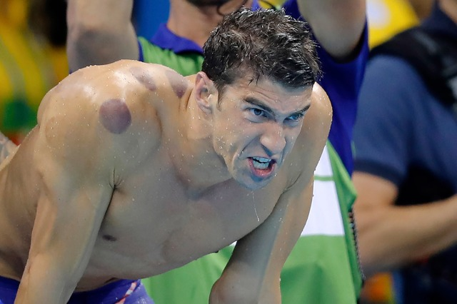 michael-phelps-cupping-terapia