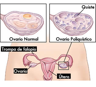 como-curar-ovarios-poliquisticos
